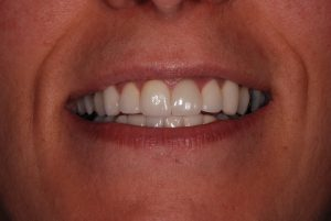 Porcelain veneers in Greece