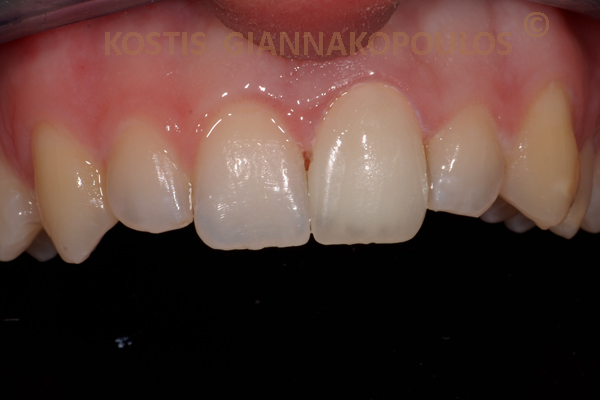 Single porcelain veneer after treatment