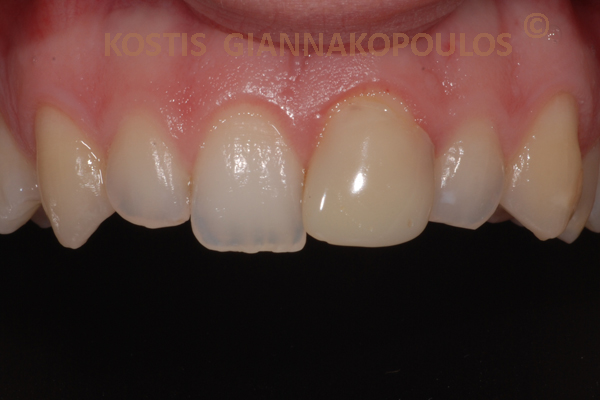 Single tooth Porcelain veneer