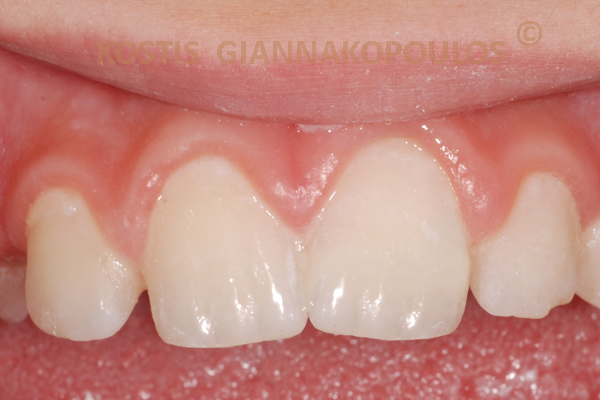 Αποκατάσταση του σπασμένου δοντιού μρ τη μέθοδο Bonding