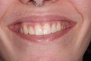 www.smile-clinic.gr