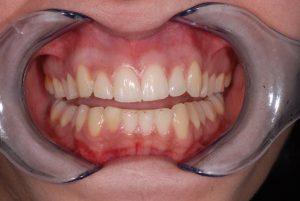 Σύνθετη ρητίνη στο σπασπένο δόντι