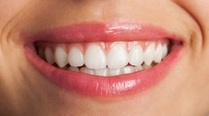 Πολλές φορές η φθηνή τιμή δεν είναι ό,τι καλύτερο μπορούμε να επιλέξουμε. Οι οδοντικές όψεις πρέπει να είναι κατασκευασμένες από υλικά που δεν επιβαρύνουν την υγεία των δοντιών και να αποδώσουν σωστά για τουλάχιστον 10 - 15 χρόνια.