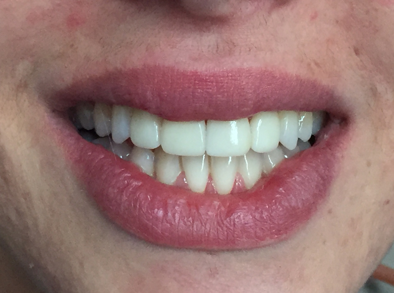 Porcelain veneers treating worn teeth