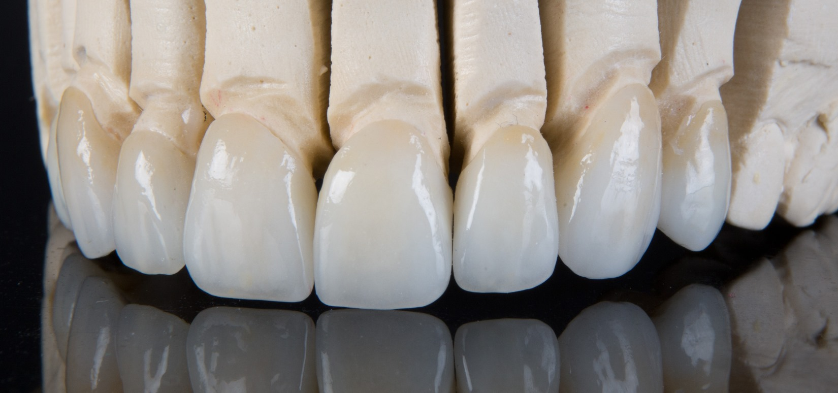 Porcelain veneers on cast