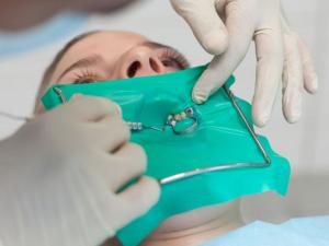 """Φωτό 4. Ο ελαστικός απομονωτήρας δημιουργεί ένα """"χειρουργικό"""" πεδίο, έτσι ώστε να μην μπορεί να μολυνθεί το δόντι στο οποίο εργάζεται ο οδοντίατρος από μικρόβια του στόματος. Η απομόνωση θεωρείται απαραίτητη για την επιτυχία της απονεύρωσης."""