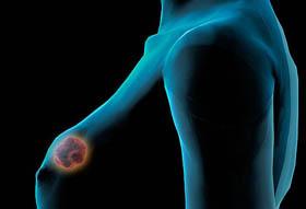 Καρκινος μαστου
