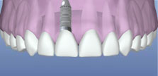 Τοποθέτηση οδοντικού εμφυτεύματος