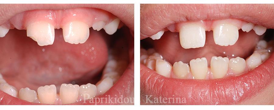 Παιδί - σπασμένο δόντι