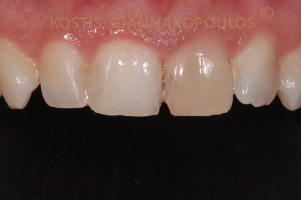 Μεμονωμένο δυσχρωμικό δόντι πριν την λεύκανση