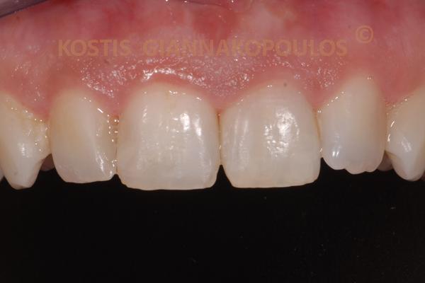 Μετά από λεύκανση του δυχρωμικού δοντιού