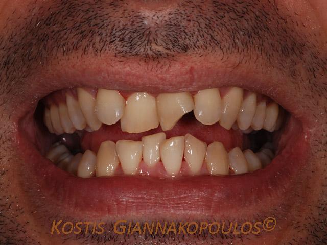 Χαμόγελο πριν τη θεραπεία
