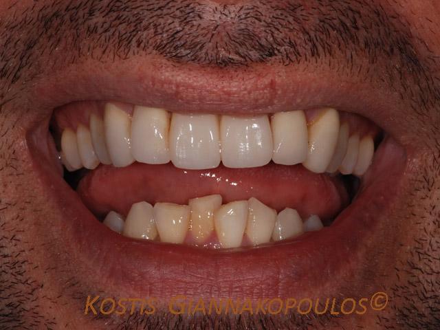 Χαμόγελο μετά τη θεραπεία