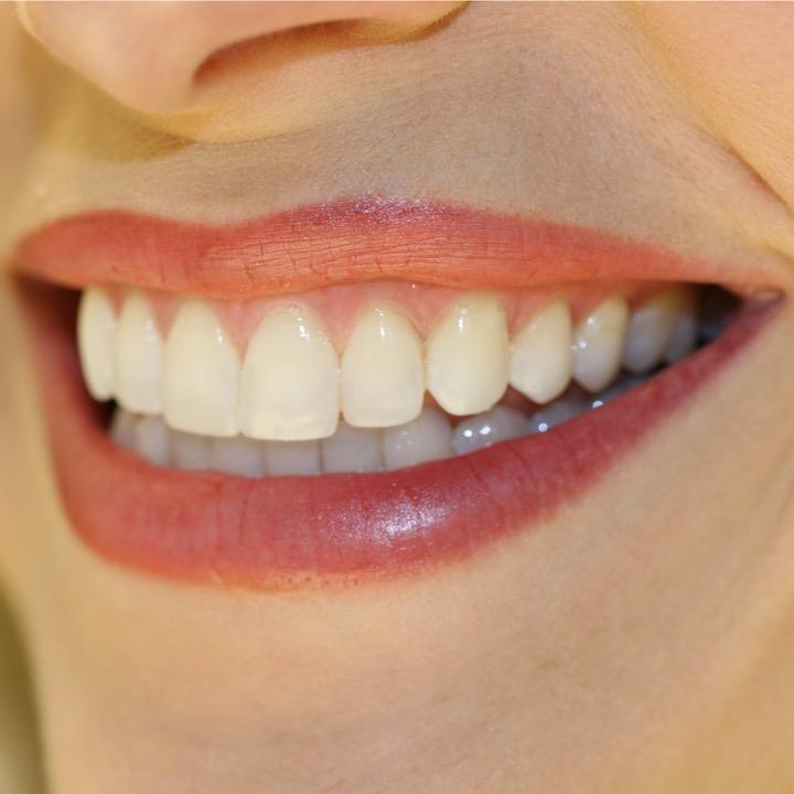 Οδοντικές όψεις